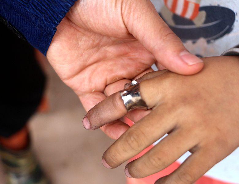 """达州一小学生手指被卡肿的得像""""香肠"""" 消防员细心解救"""